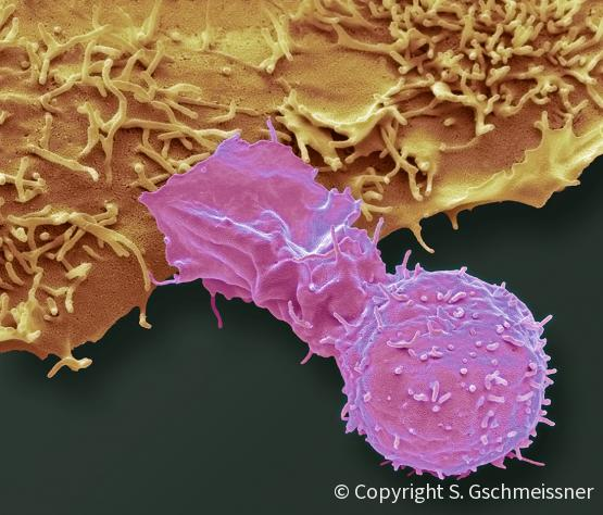 natural killer cell and cancer cell