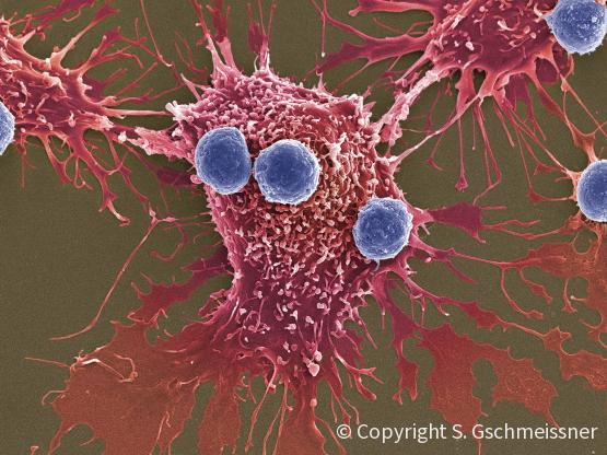 T cells and cancer cell